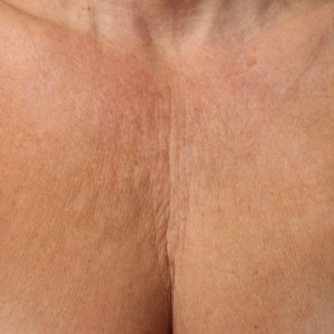 Ultherapy-007KMP_0Day_BEFORE_Chest_hi-res