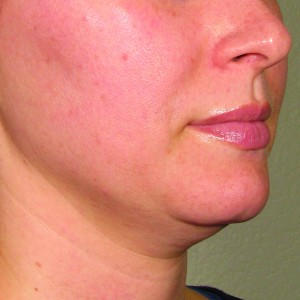 Ultherapy-0132P-H_0Day_BEFORE_LOWER_hi-res